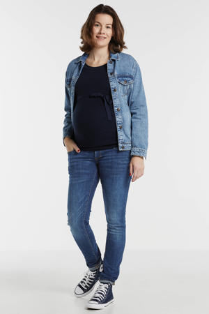 zwangerschapsjeans skinny Avi Everyday Blue