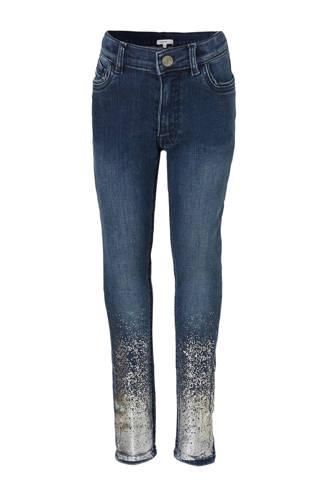 skinny jeans Westview met metallic details