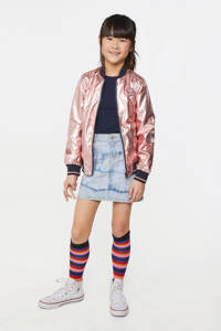 WE Fashion zomerjas rosé metallic, Rosé metallic