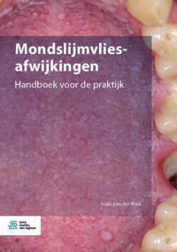 Mondslijmvliesafwijkingen - Isaäc van der Waal