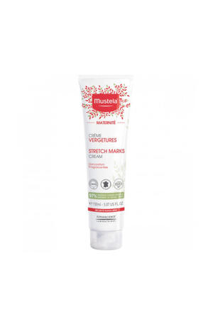 Stretch Marks Prevention Cream - 150 ml