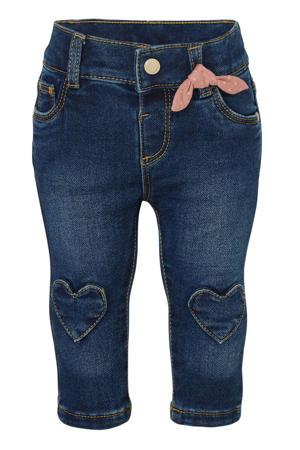 baby skinny jeans dark denim